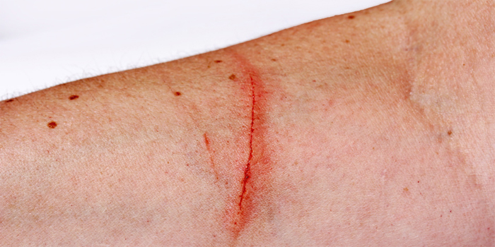 עבירות פציעה וגרימת חבלה חמורה