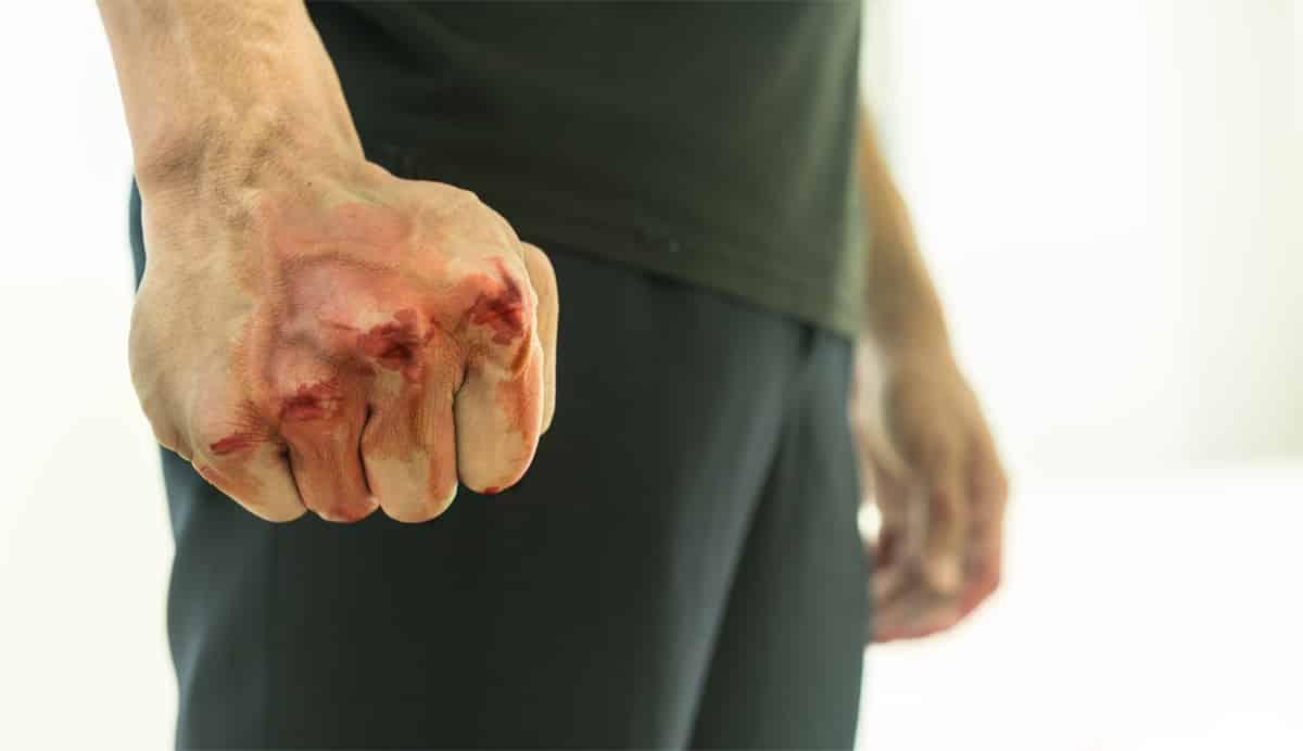 ביטול הרשעה ללקוח שתקף אדם אחר באגרופים וגרם לו לחבלות וחתכים בפנים