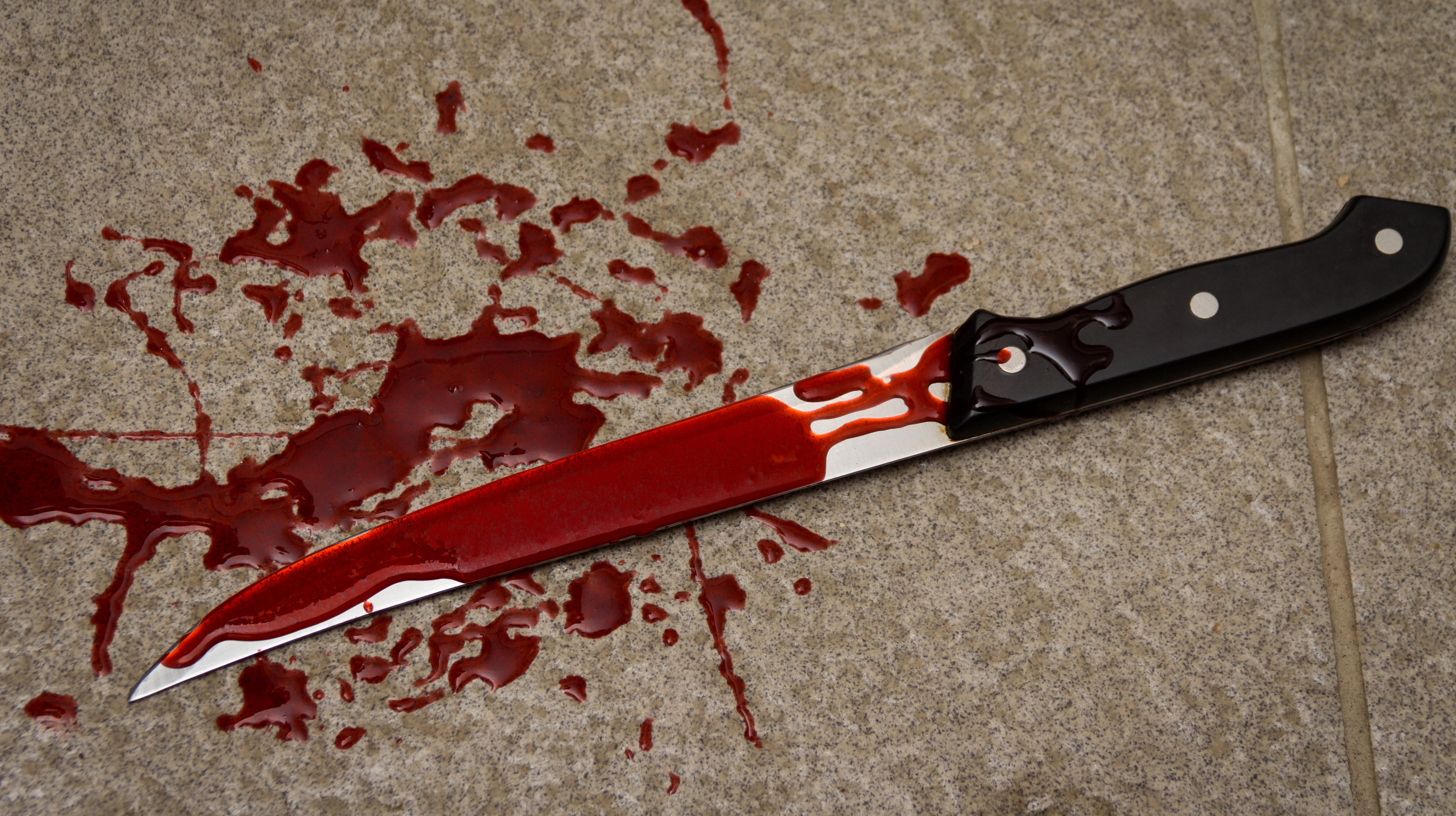 שחרור ממעצר אדם שהואשם שדקר בסכין קטין ופצע אותו קשה