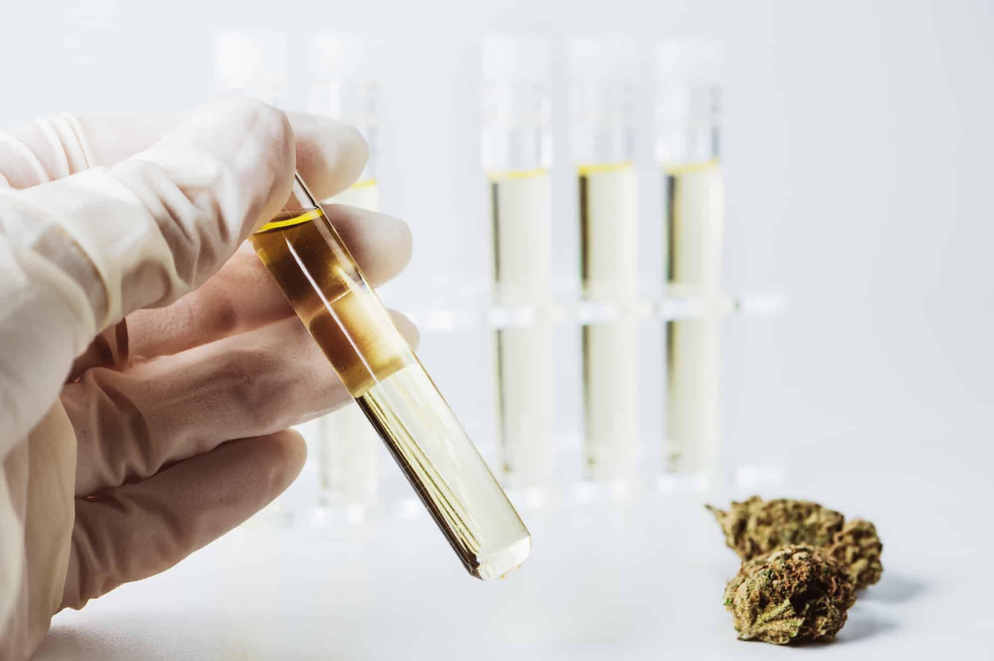 בדיקות שתן לגילוי סמים - כל מה שצריך לדעת